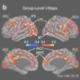 Dynamic and static contributions of the cerebrovasculature to the resting-state BOLD signal.